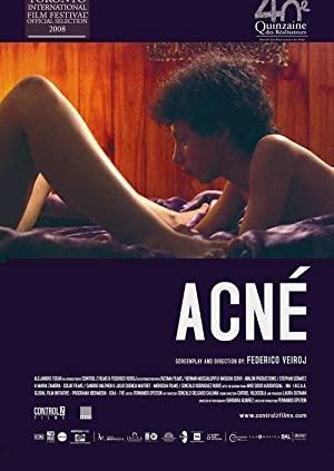 Acne 720p Erotik Film +18 izle